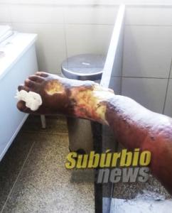 paciente com ferimentos na perna