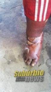paciente com ferimentos na perna 4