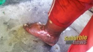 paciente com ferimentos na perna 5